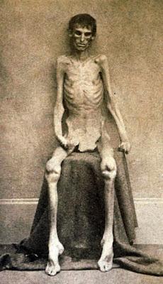 Emaciated Andersonville Union survivor